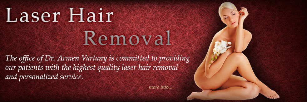 laserhairremoval1